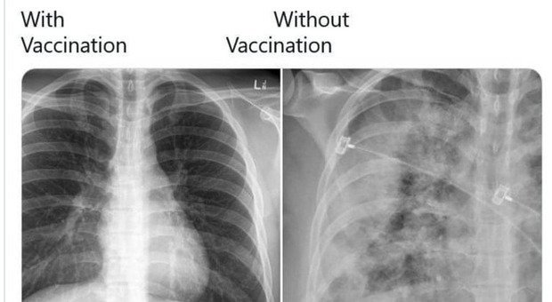 Covid, gli effetti sui polmoni su è vaccinato e chi no: il confronto