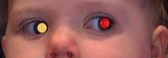La Neonata Ha Un Cancro All Occhio I Genitori Lo Scoprono